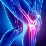 Peripheral Nerve Blocks and the Post-op Total Knee Replacement Patient